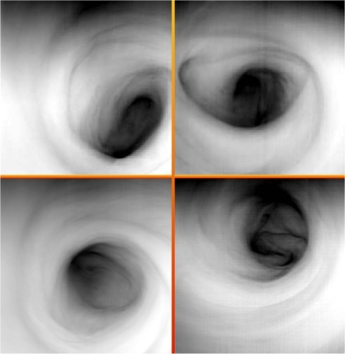 The many faces of Venus' south polar vortex