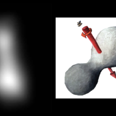 Detecting 2014 MU69's Size and Shape on Approach