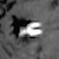 Luna 17 Russian lander photo from LRO